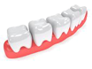 Parodontologija i bolesti usta