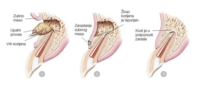 Apikotomija