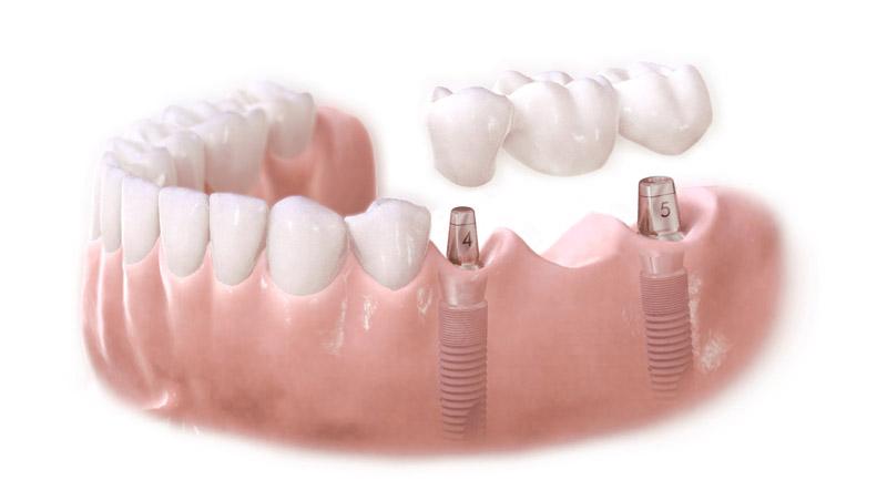 Hirurgija i ugradnja implantata