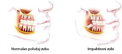 impaktirani-zubi