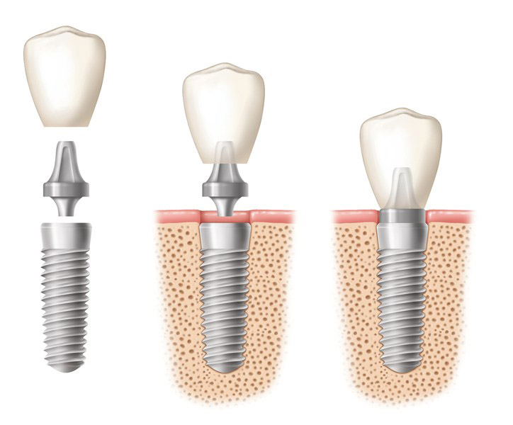 Implanti 22