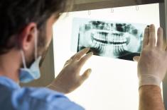 stock-photo-62392724-dental-x-ray