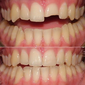 composite-fillings1-300x300