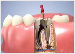 service_rootcanal