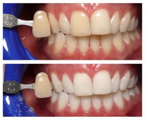 teeth whitening cosmetic dentistry castle hill