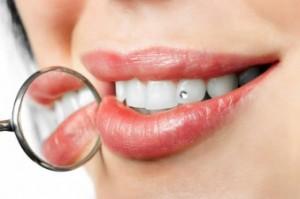 Zubni nakit