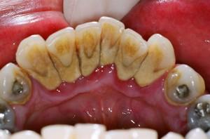 zubni_kamenac_primjer